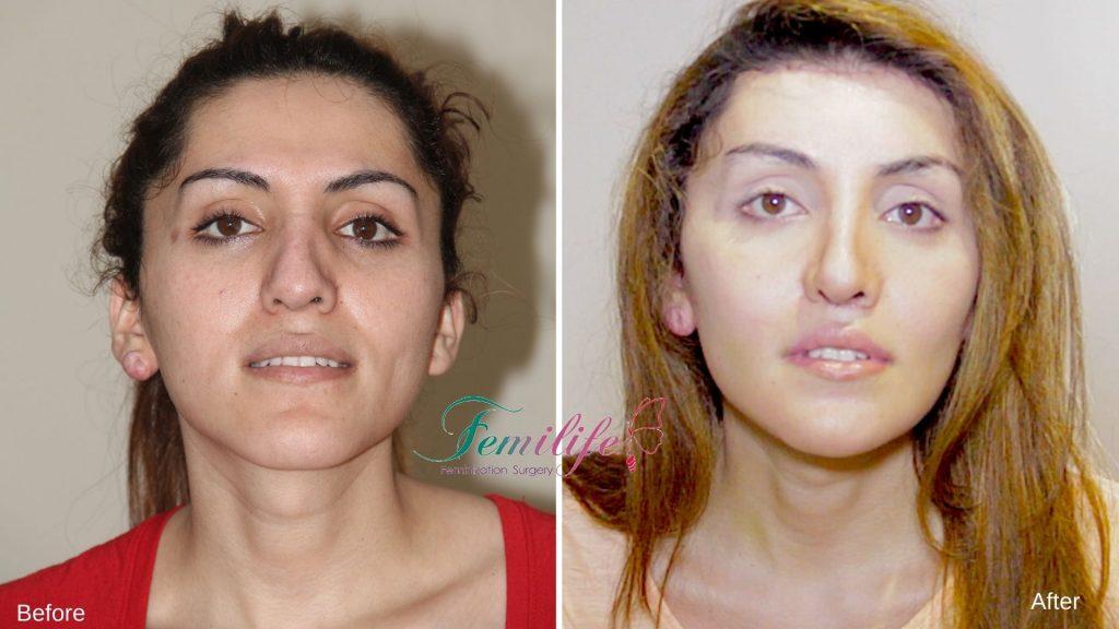 facial feminization surgery femilife