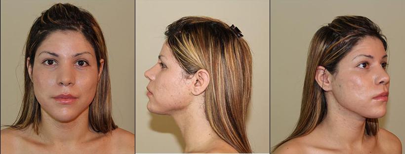facial feminization surgeries