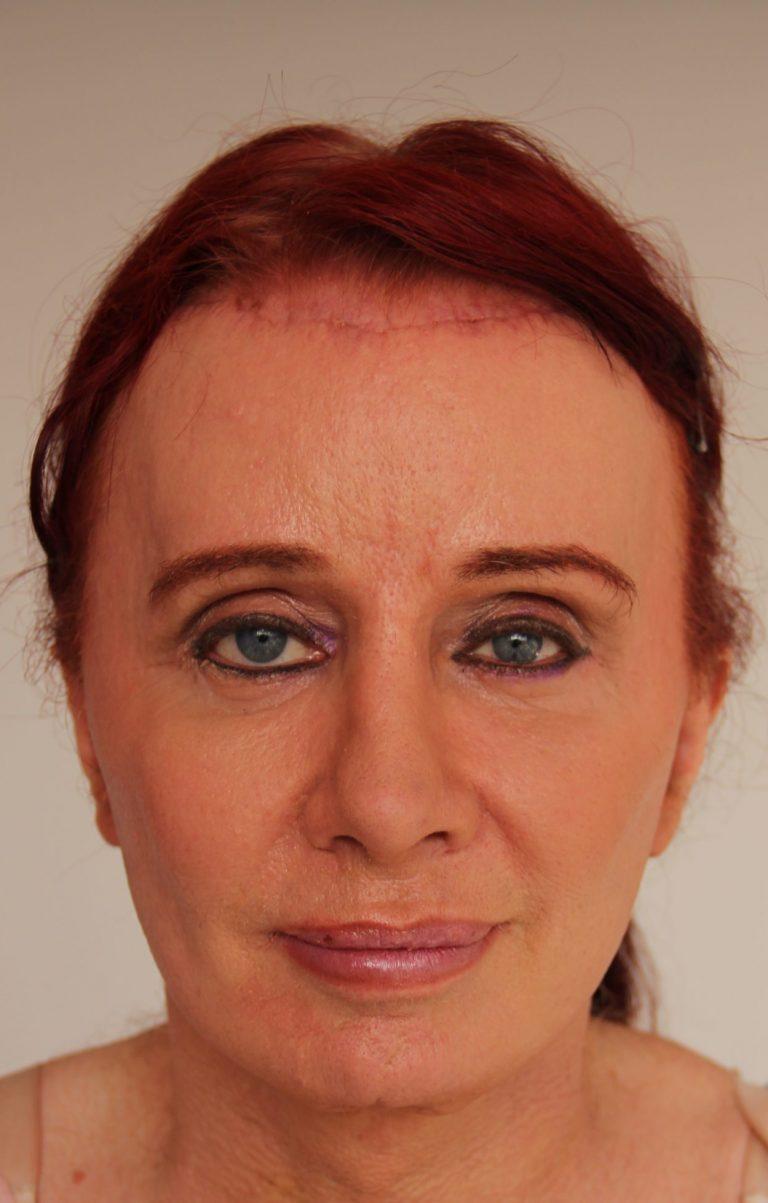 facelift and facial feminization surgery en femilife