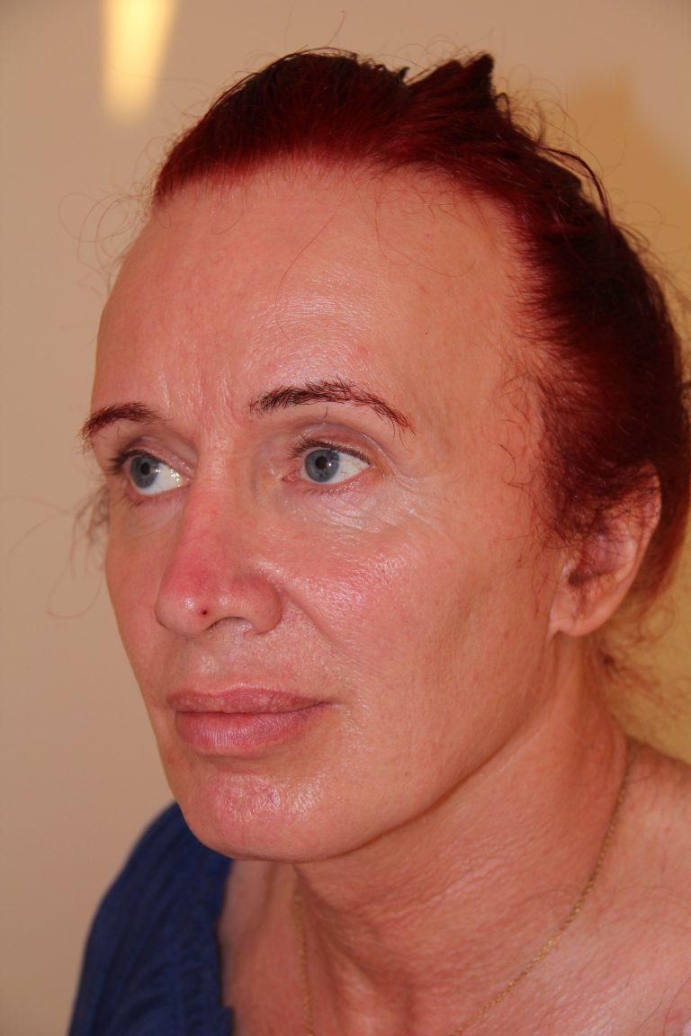 facial feminization surgery in femilife peru