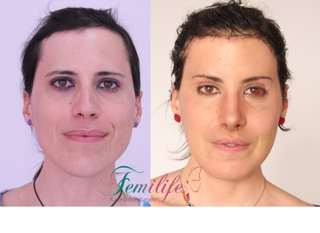 facial feminization surery